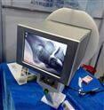 怎样使用便携式X光机尤其在手足外科方面